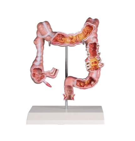 Colon model with diseases - zdjęcie nr: 1