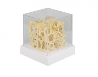 Healthy / osteoporotic bone structure comparison model - photo nr: 1
