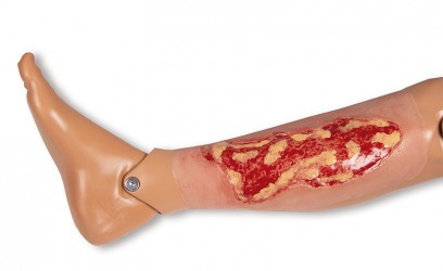 Wound moulage venous leg ulcer, large, exudation phase  - photo nr: 2