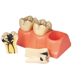 Dental caries model (3 sections, 6 parts) - zdjęcie nr: 1